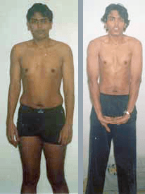 Abhinav's Fat Vanish natural weight loss photo